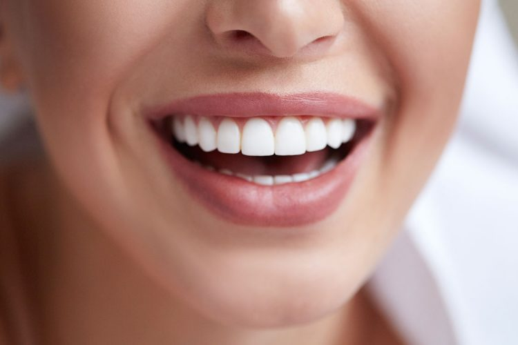 Estetske zobne luske