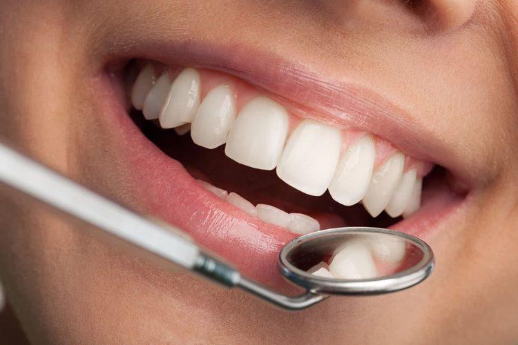 Zobozdravniški pregled